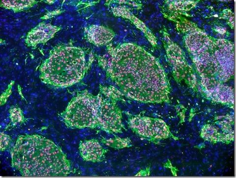 Stem Cells Answer The Question Could We Possibly Live 200 Yearss