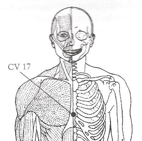 CV-172