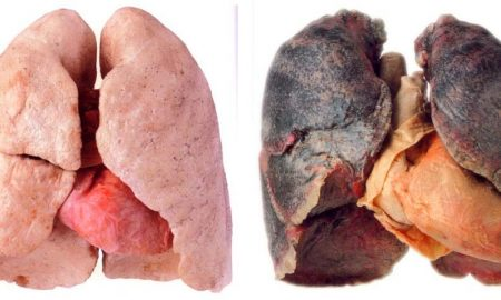 There's no magical formula that will cleanse the lungs instantly, but here is a list of foods that works best at throwing out the nicotine and tar.