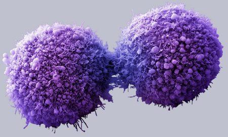 Universal Cancer Vaccine